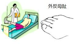 外反母趾で入院するイラスト